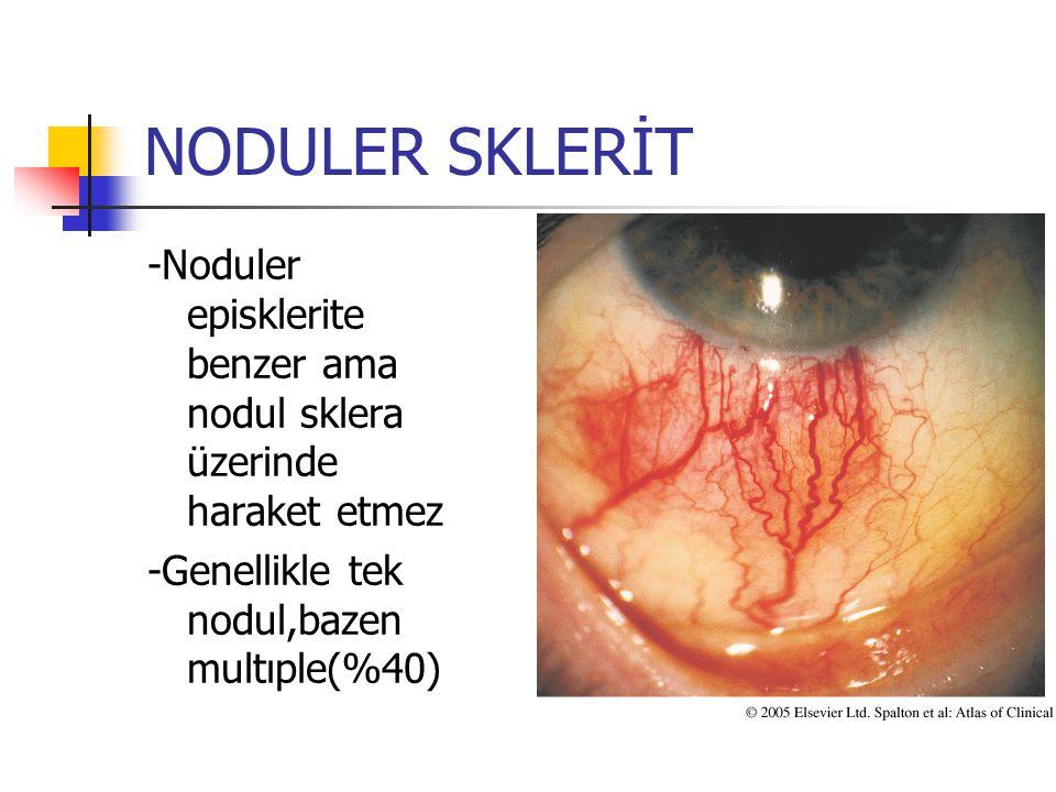 NODULER SKLERİT -Noduler episklerite benzer ama nodul sklera üzerinde haraket etmez.