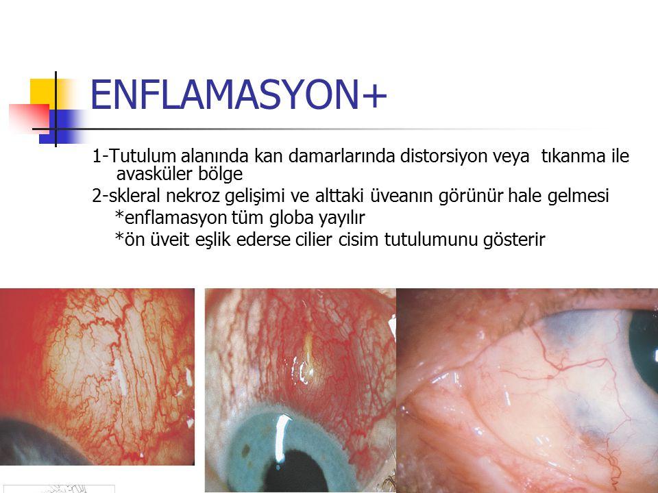 ENFLAMASYON+ 1-Tutulum alanında kan damarlarında distorsiyon veya tıkanma ile avasküler bölge.