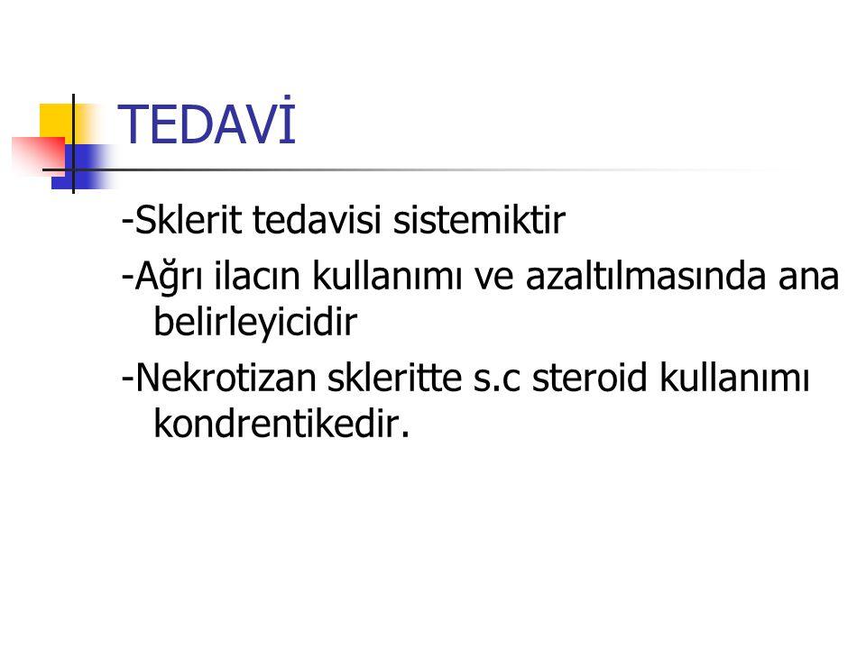 TEDAVİ -Sklerit tedavisi sistemiktir