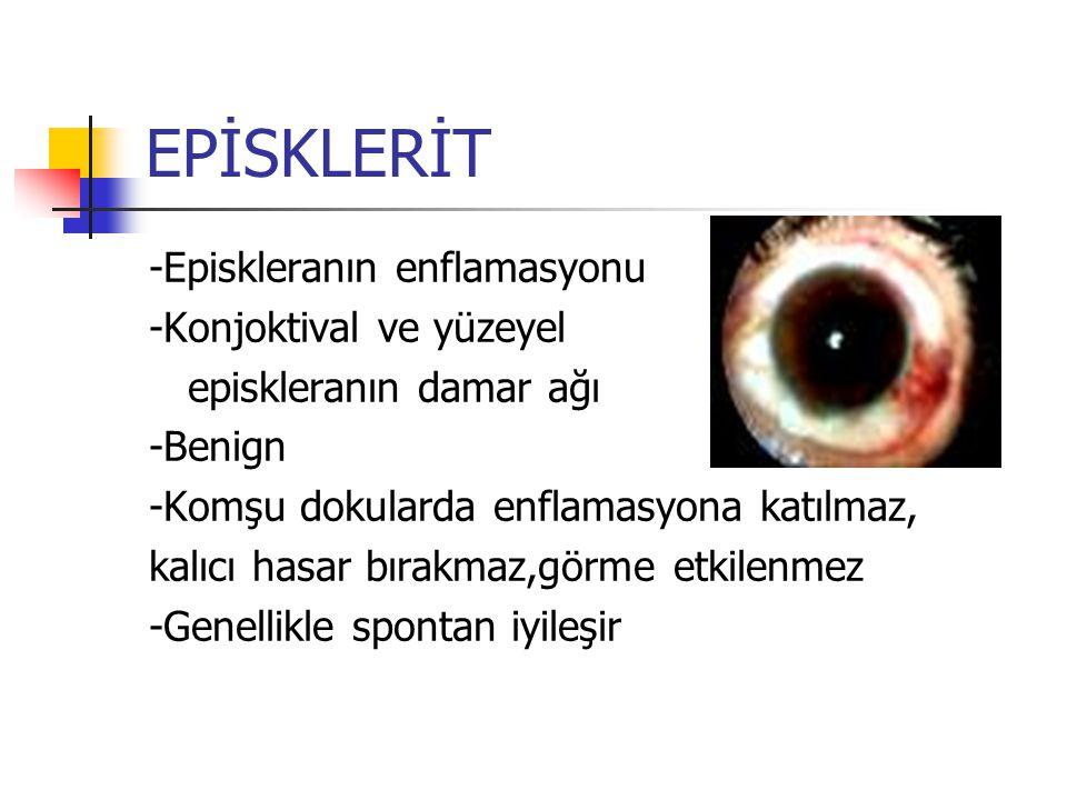 EPİSKLERİT -Episkleranın enflamasyonu -Konjoktival ve yüzeyel