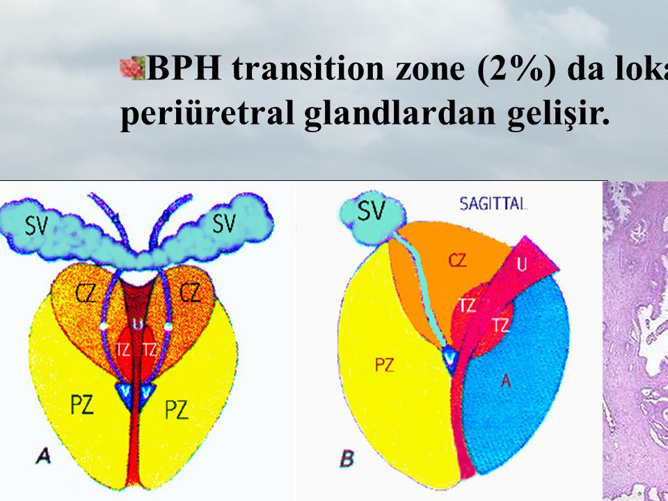 Prostat Anatomisi BPH transition zone (2%) da lokalize submukozal periüretral glandlardan gelişir.