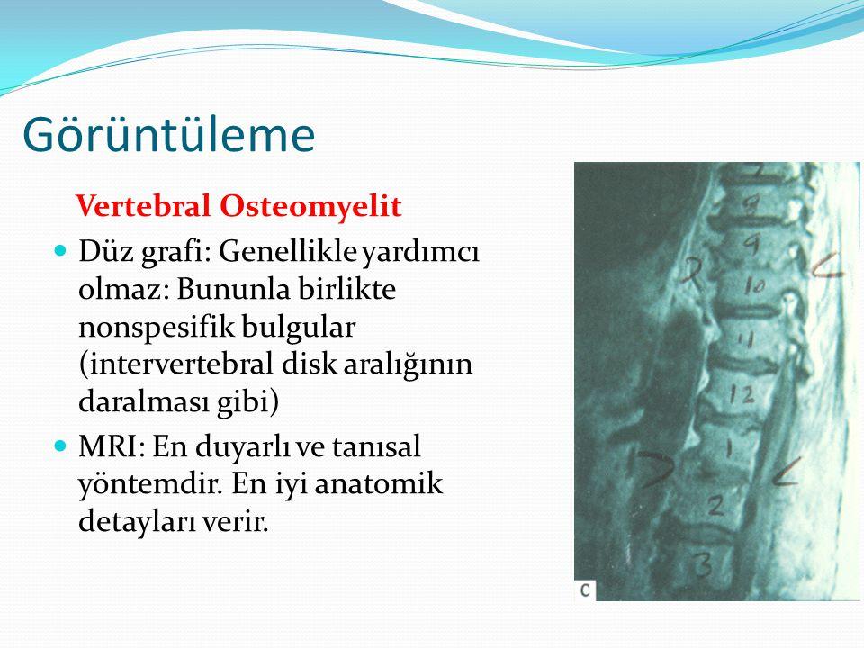 Görüntüleme Vertebral Osteomyelit