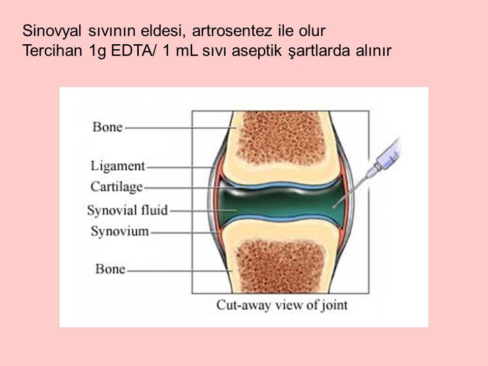 Sinovyal sıvının eldesi, artrosentez ile olur