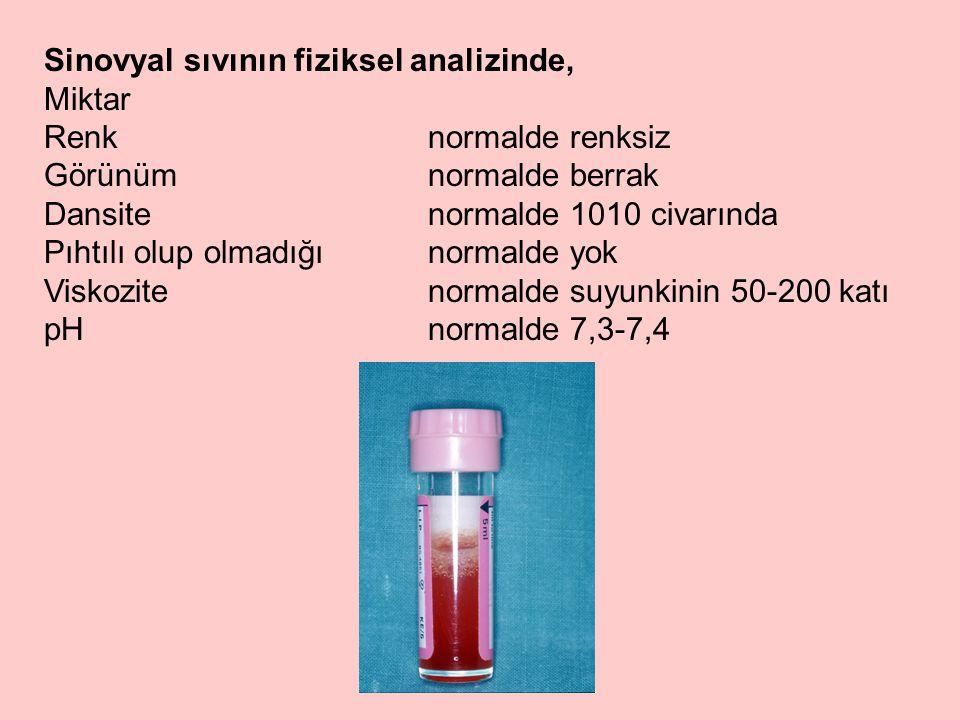 Sinovyal sıvının fiziksel analizinde,