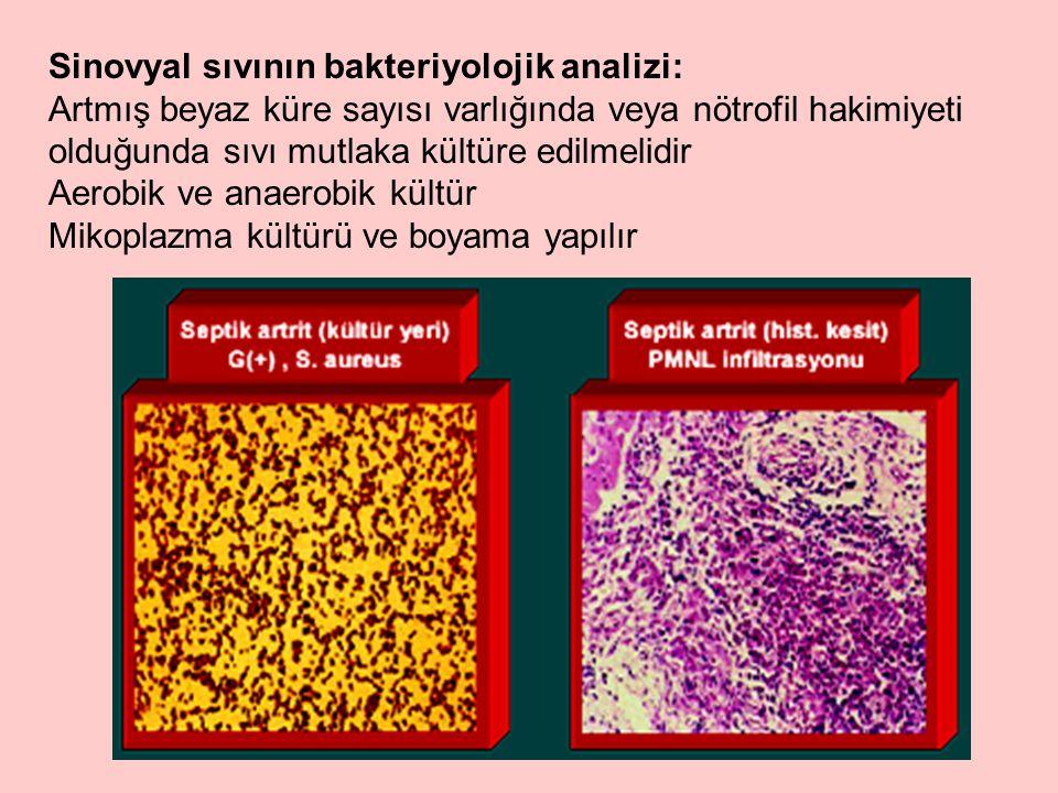 Sinovyal sıvının bakteriyolojik analizi: