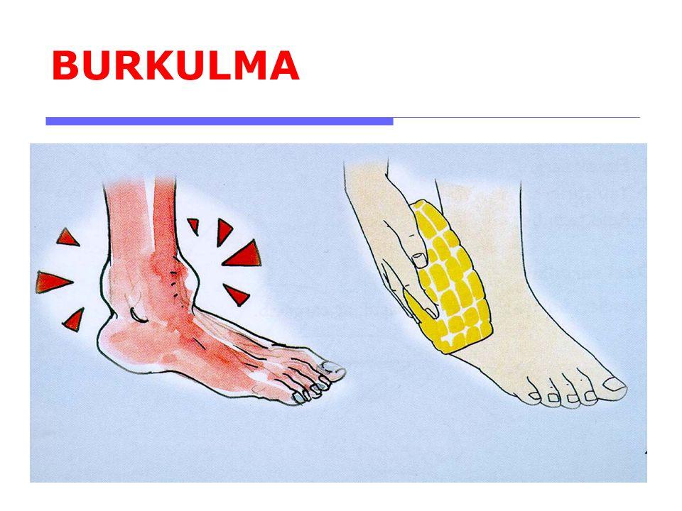 BURKULMA