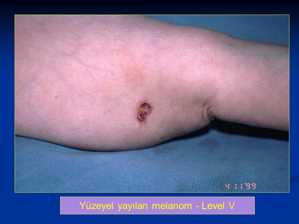 Yüzeyel yayılan melanom - Level V