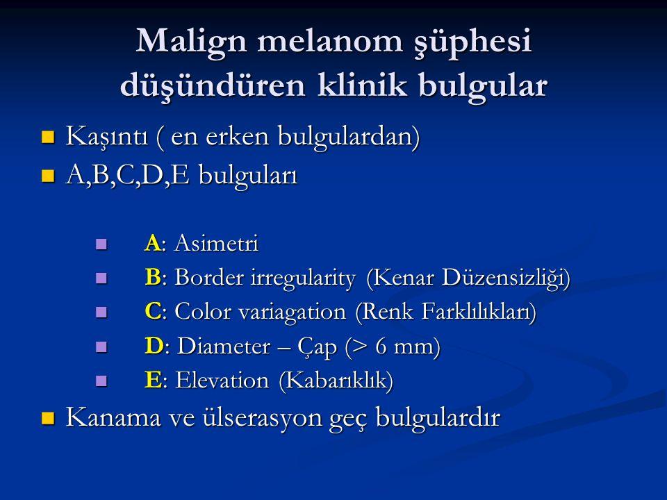 Malign melanom şüphesi düşündüren klinik bulgular