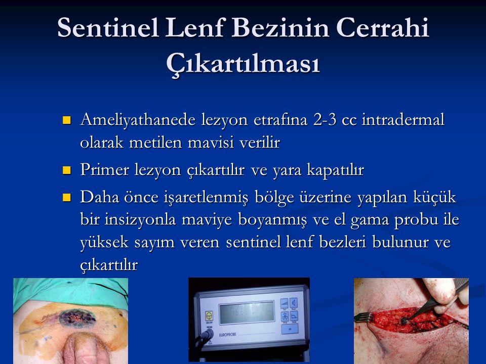 Sentinel Lenf Bezinin Cerrahi Çıkartılması