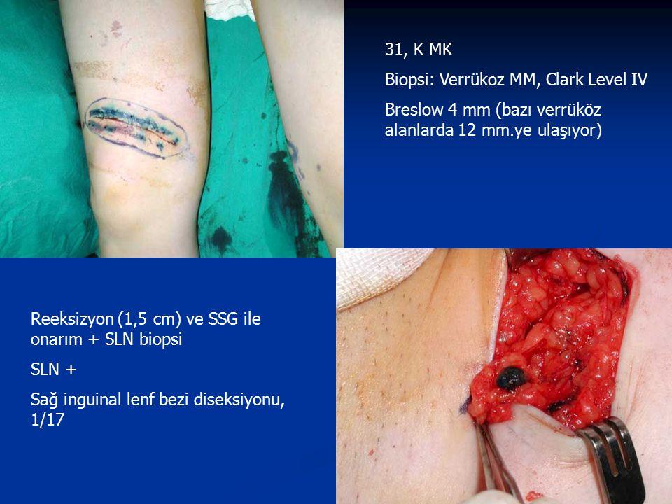 31, K MK Biopsi: Verrükoz MM, Clark Level IV. Breslow 4 mm (bazı verrüköz alanlarda 12 mm.ye ulaşıyor)