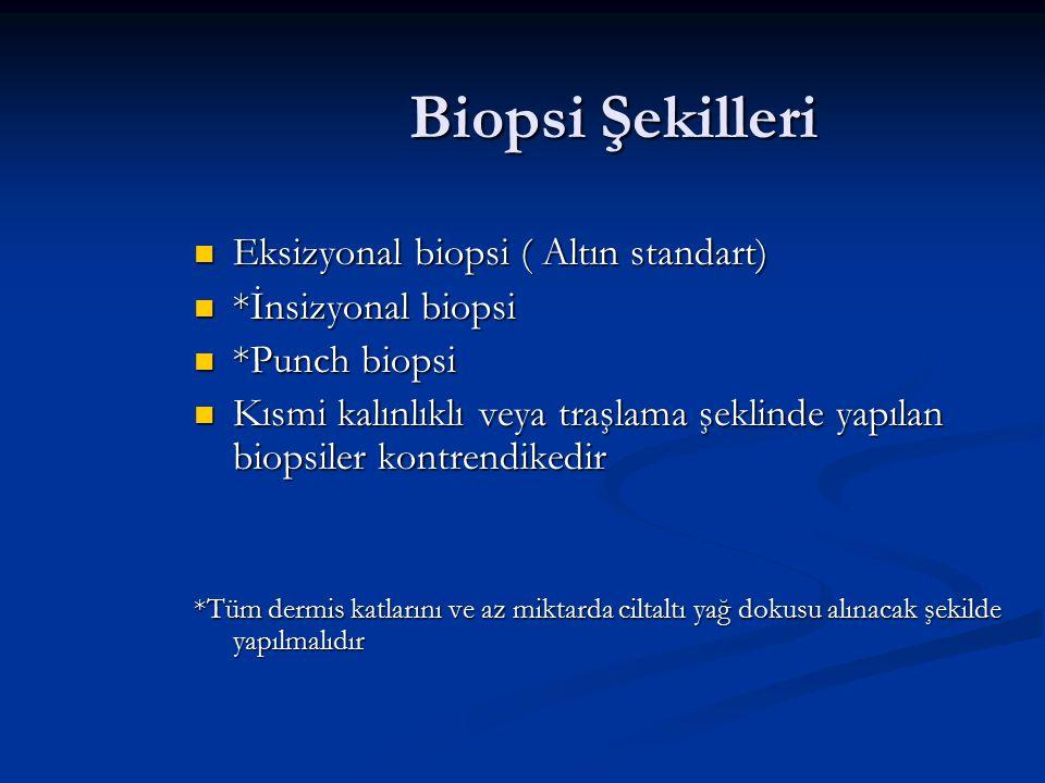Biopsi Şekilleri Eksizyonal biopsi ( Altın standart)