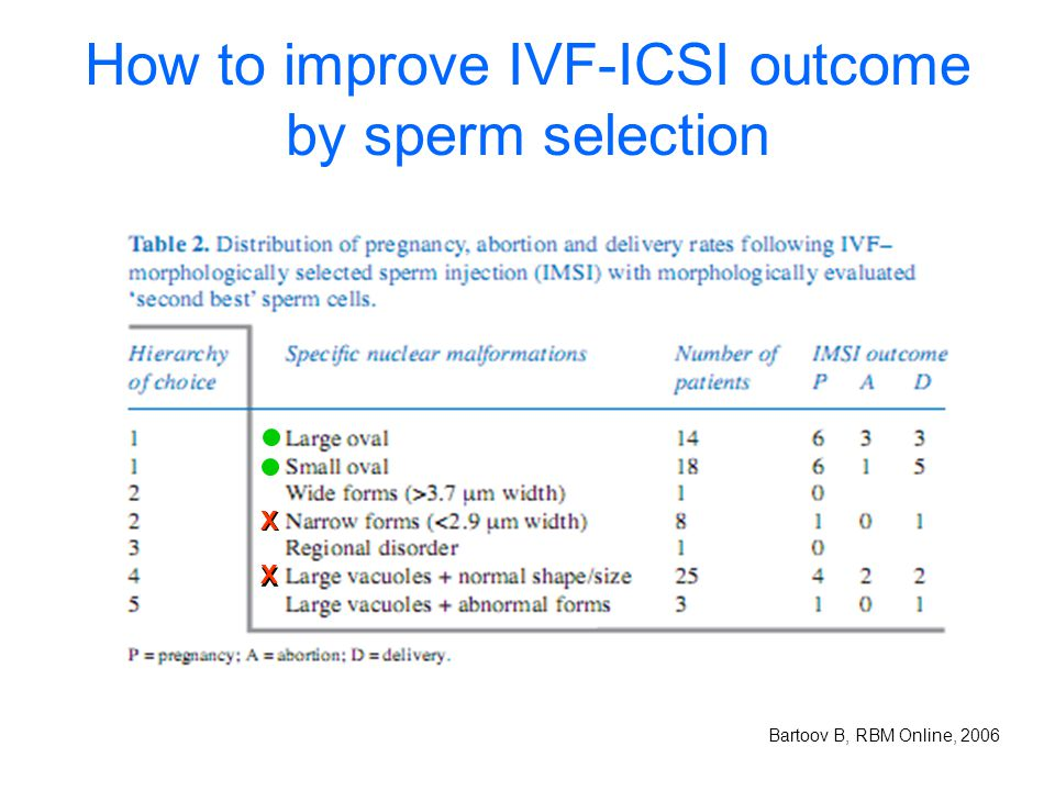 How to improve IVF-ICSI outcome by sperm selection
