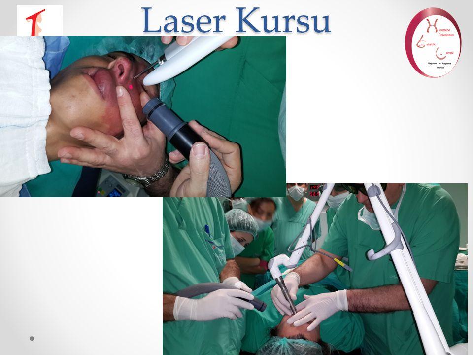 Laser Kursu