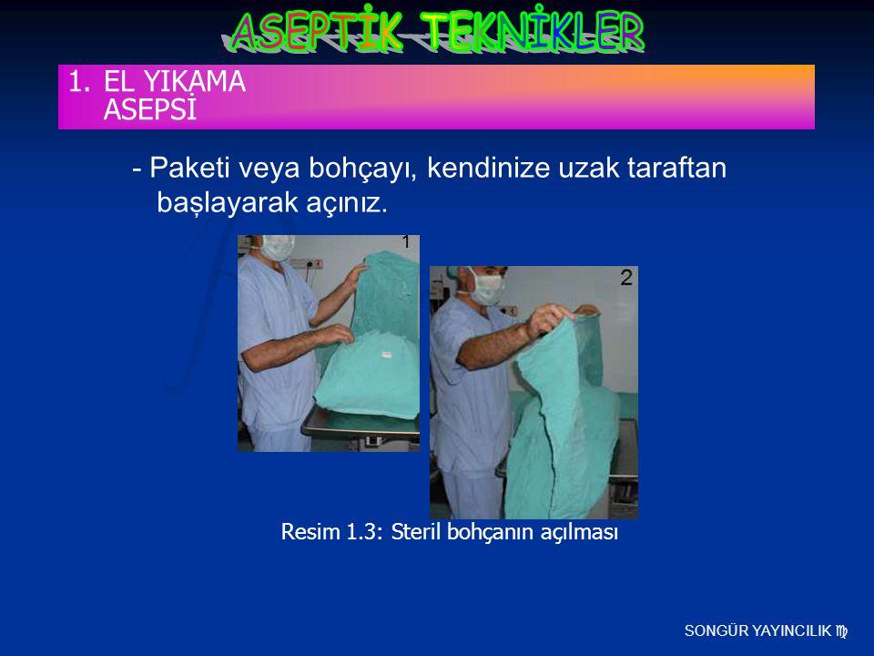 Resim 1.3: Steril bohçanın açılması