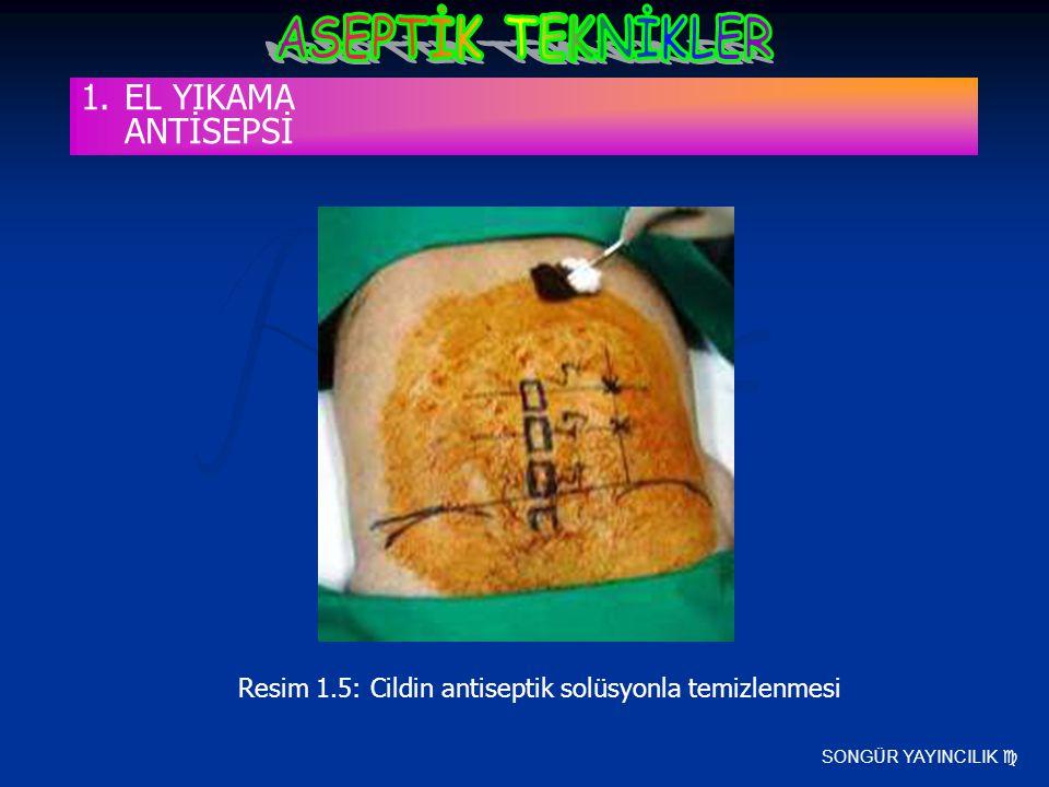 Resim 1.5: Cildin antiseptik solüsyonla temizlenmesi