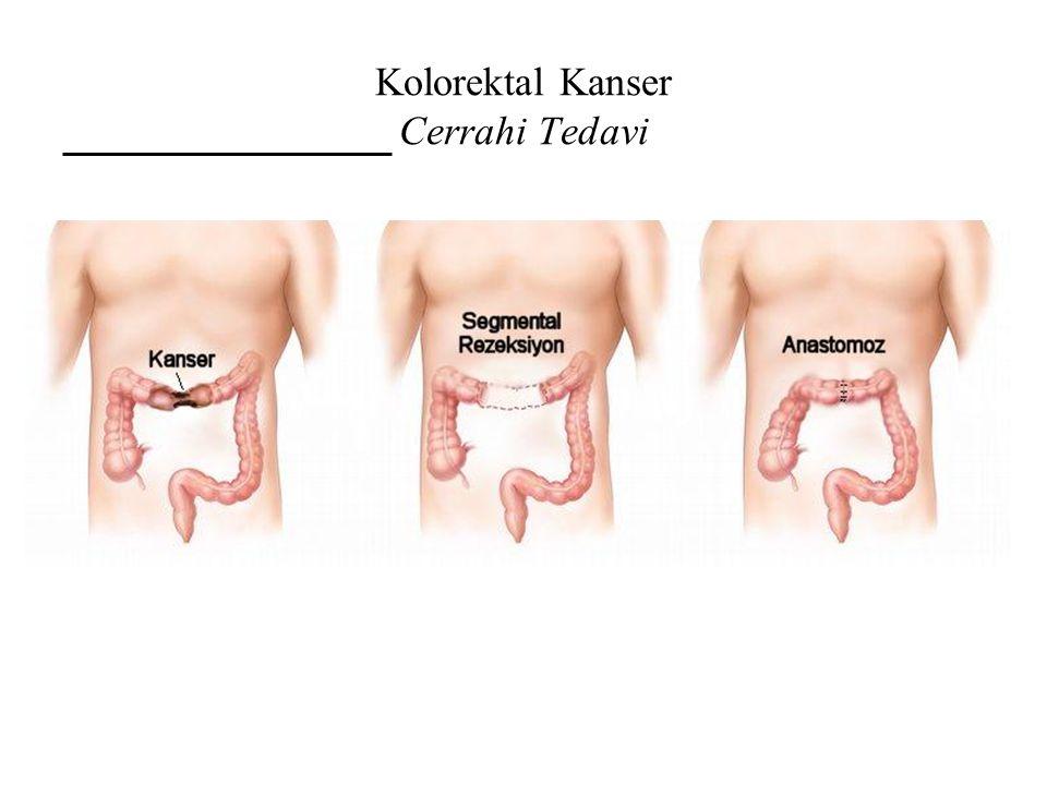 Kolorektal Kanser Cerrahi Tedavi