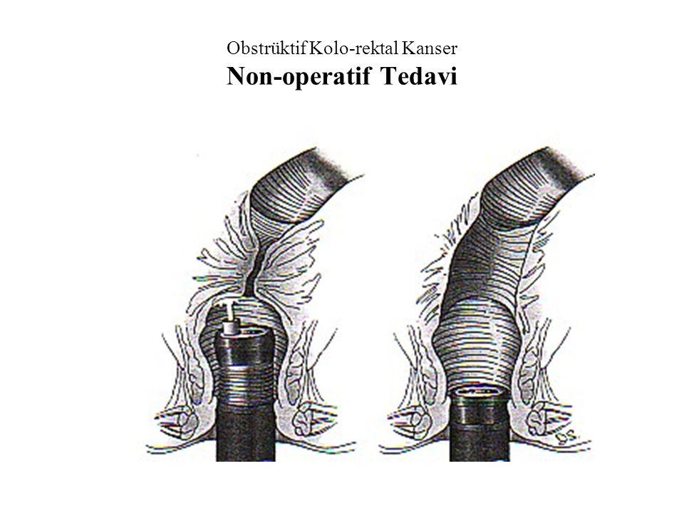 Obstrüktif Kolo-rektal Kanser Non-operatif Tedavi