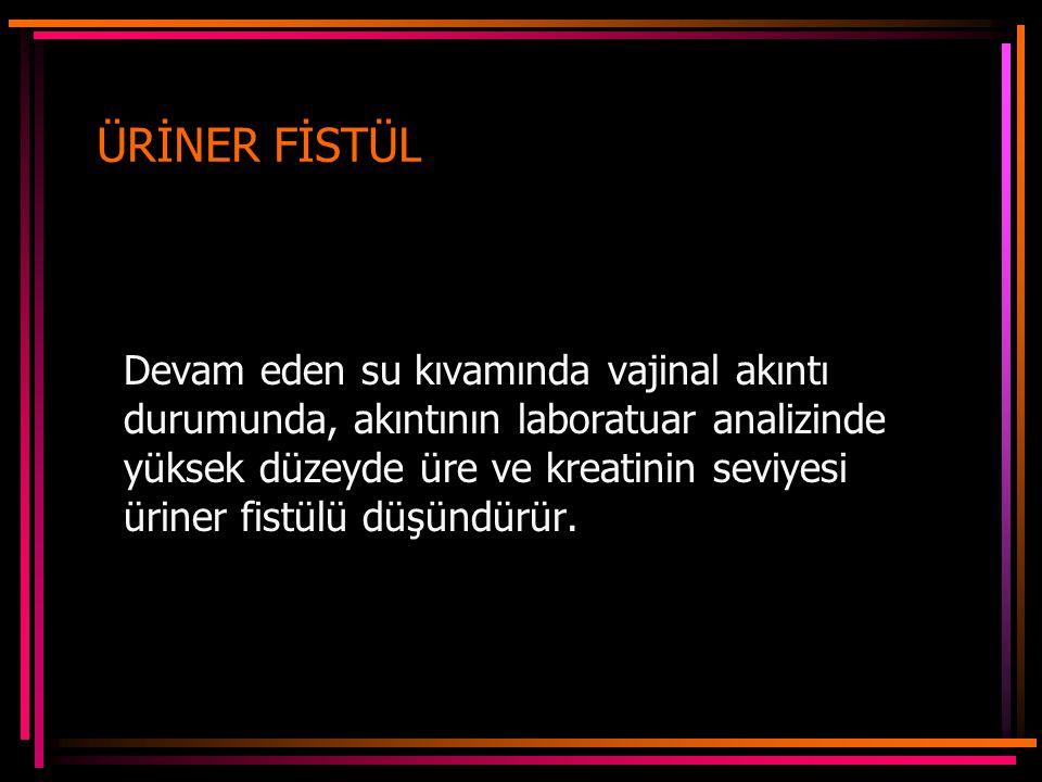 ÜRİNER FİSTÜL