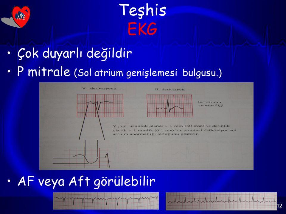 Teşhis EKG Çok duyarlı değildir