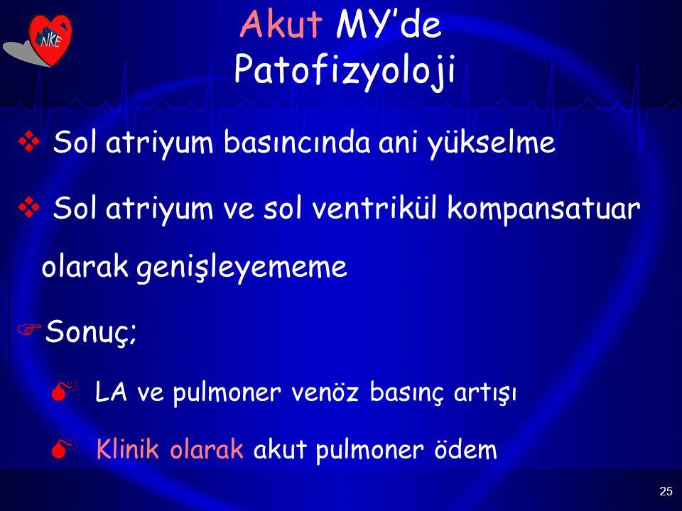 Akut MY'de Patofizyoloji