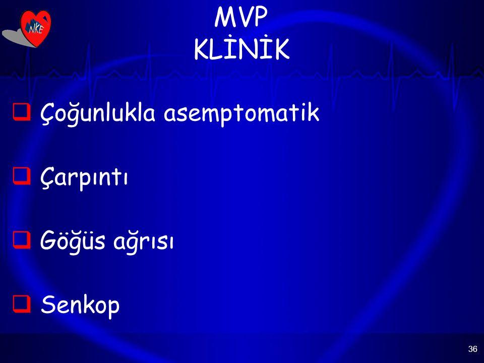 MVP KLİNİK Çoğunlukla asemptomatik Çarpıntı Göğüs ağrısı Senkop