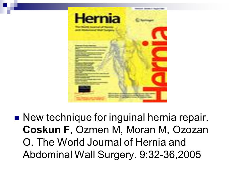 New technique for inguinal hernia repair