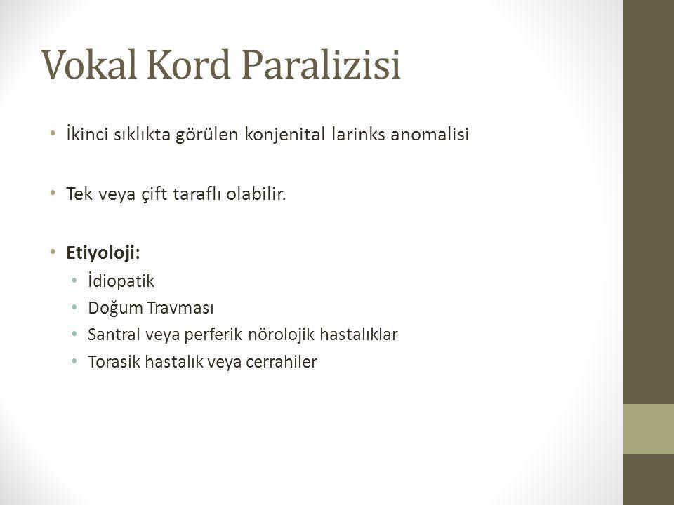 Vokal Kord Paralizisi İkinci sıklıkta görülen konjenital larinks anomalisi. Tek veya çift taraflı olabilir.