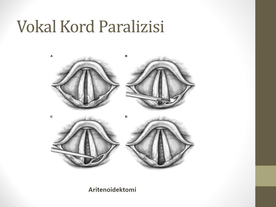 Vokal Kord Paralizisi Aritenoidektomi