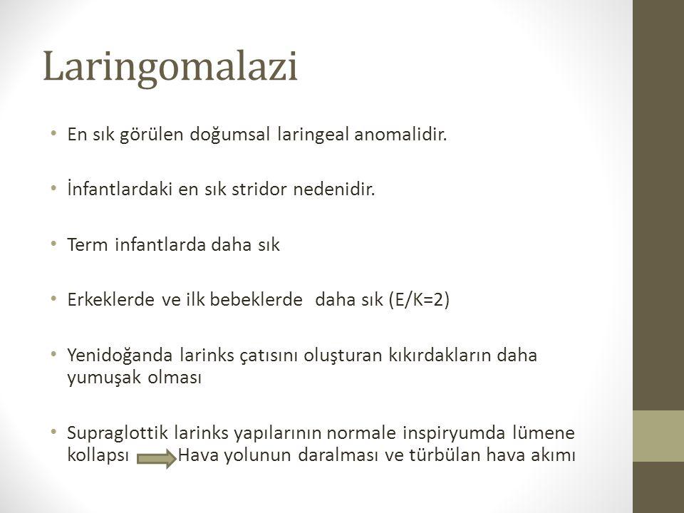 Laringomalazi En sık görülen doğumsal laringeal anomalidir.