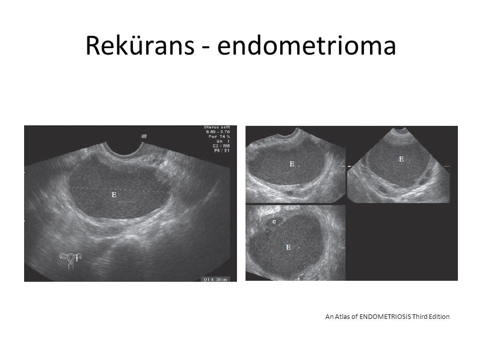 Rekürans - endometrioma
