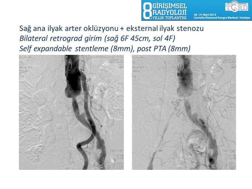 Sağ ana ilyak arter oklüzyonu + eksternal ilyak stenozu