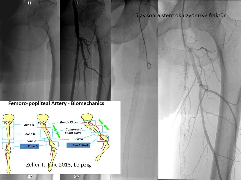 15 ay sonra stent oklüzyonu ve fraktür