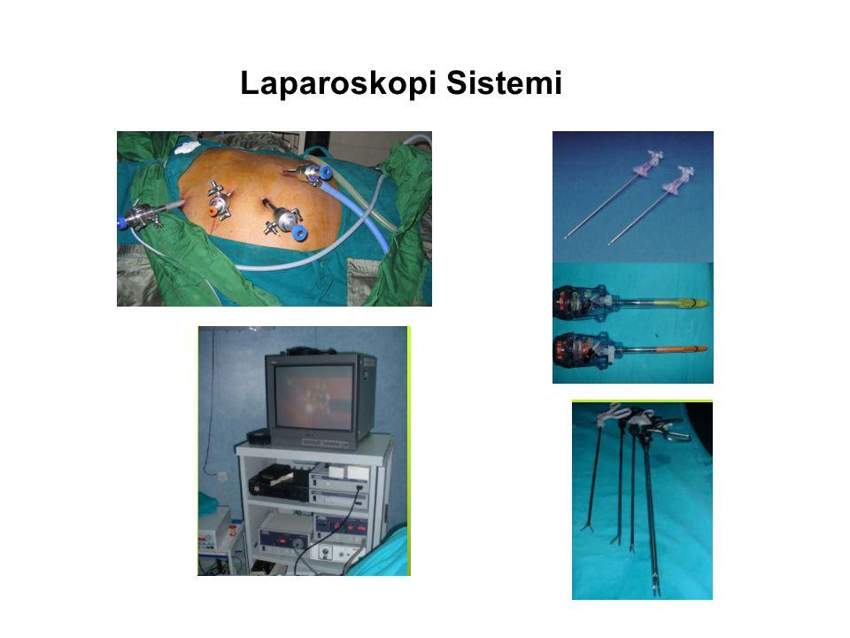 Laparoskopi Sistemi