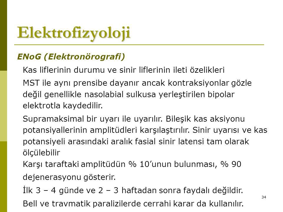 Elektrofizyoloji ENoG (Elektronörografi)