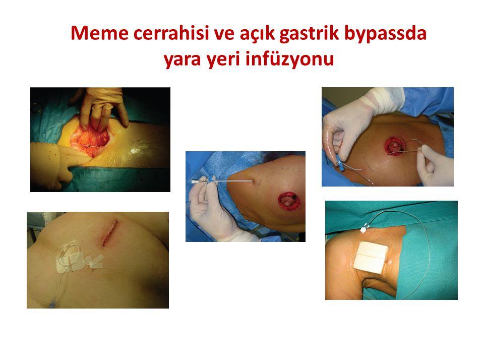 Meme cerrahisi ve açık gastrik bypassda yara yeri infüzyonu