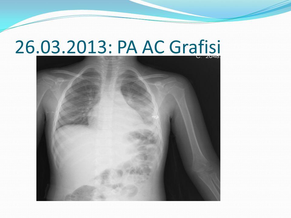 26.03.2013: PA AC Grafisi