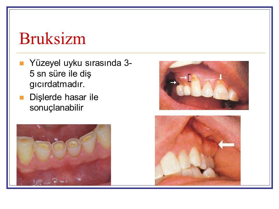 Bruksizm Yüzeyel uyku sırasında 3-5 sn süre ile diş gıcırdatmadır.