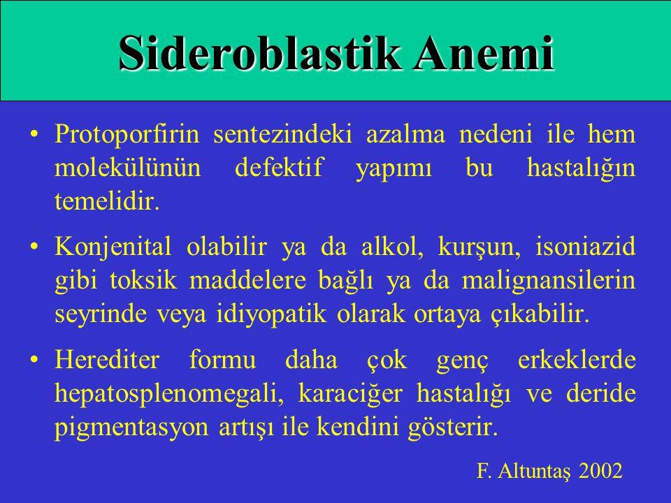 Sideroblastik Anemi Protoporfirin sentezindeki azalma nedeni ile hem molekülünün defektif yapımı bu hastalığın temelidir.