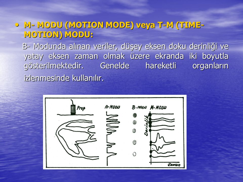 M- MODU (MOTION MODE) veya T-M (TIME-MOTION) MODU:
