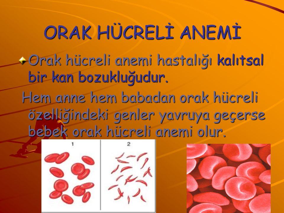 ORAK HÜCRELİ ANEMİ Orak hücreli anemi hastalığı kalıtsal bir kan bozukluğudur.