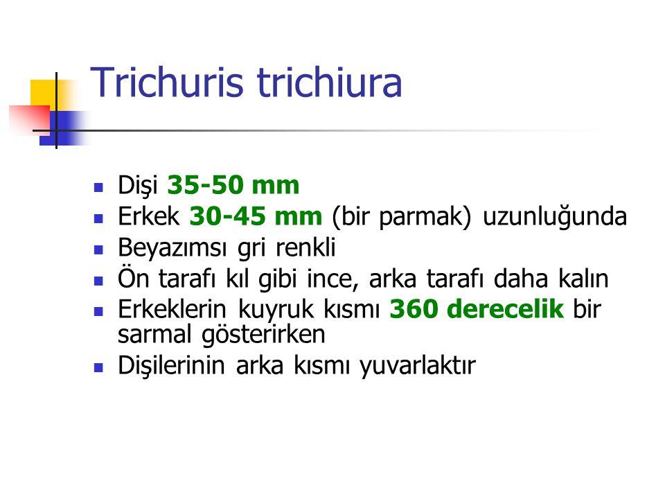 Trichuris trichiura Dişi 35-50 mm