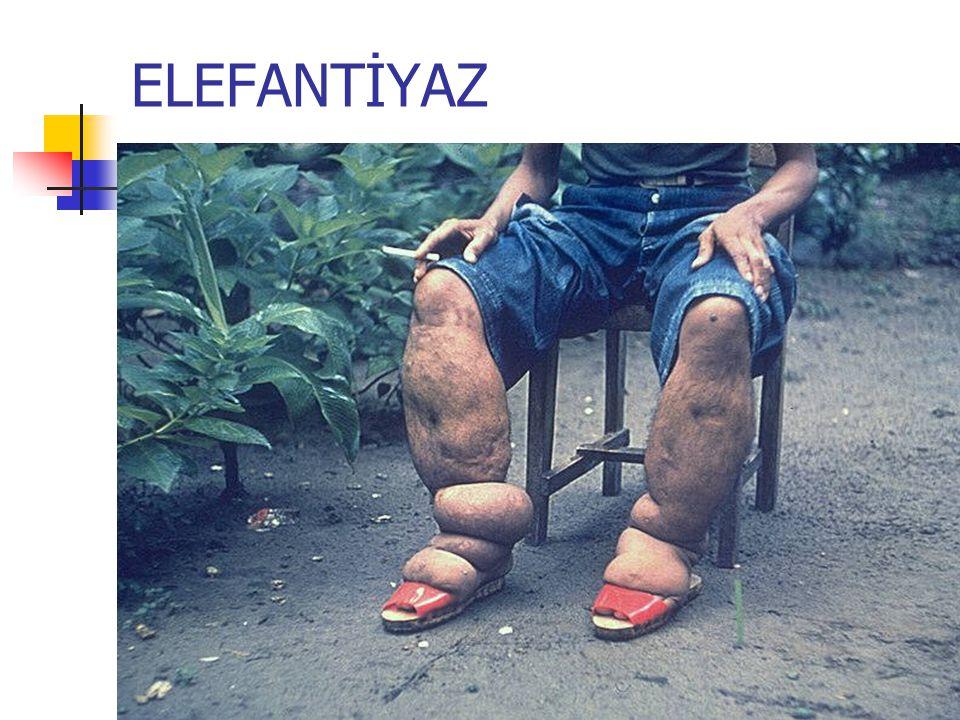 ELEFANTİYAZ