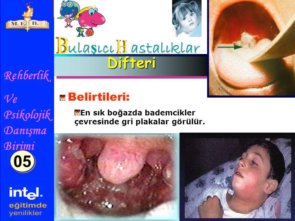 ulaşıcı astalıklar 05 Difteri Belirtileri: