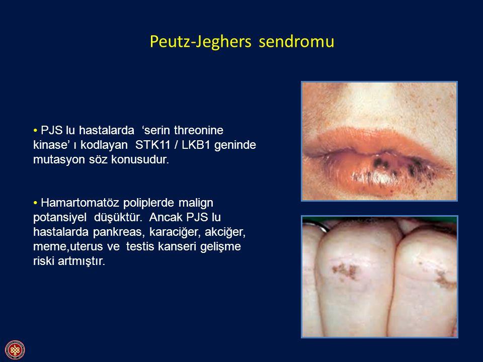 Peutz-Jeghers sendromu
