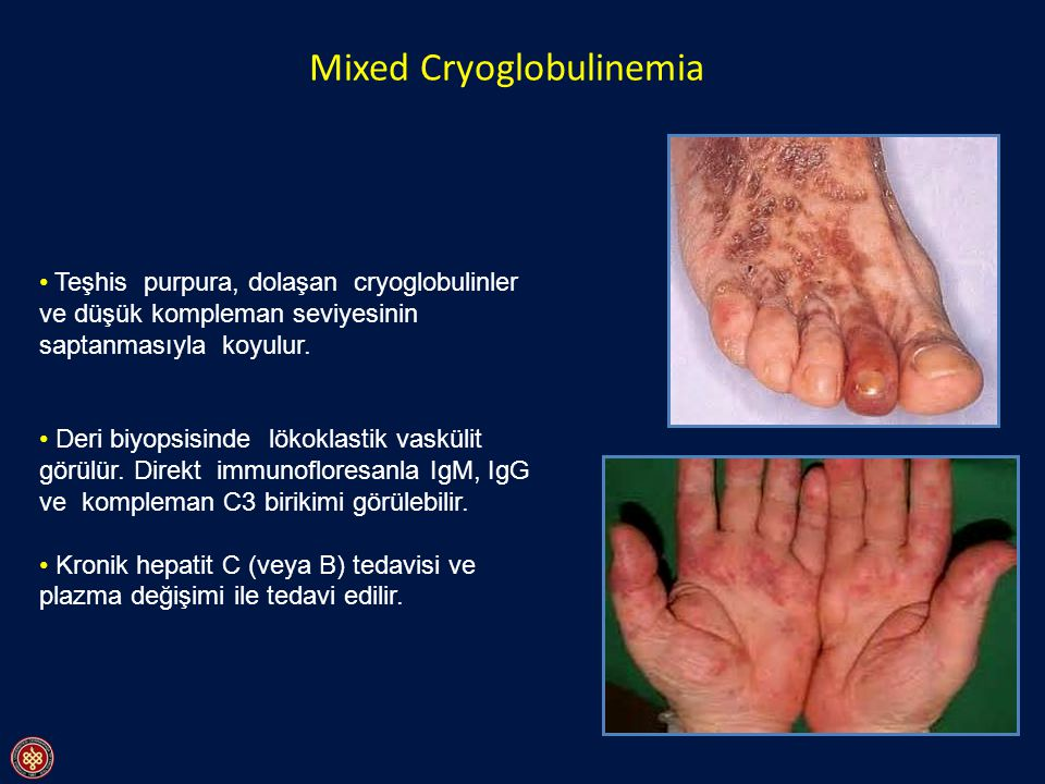 Mixed Cryoglobulinemia
