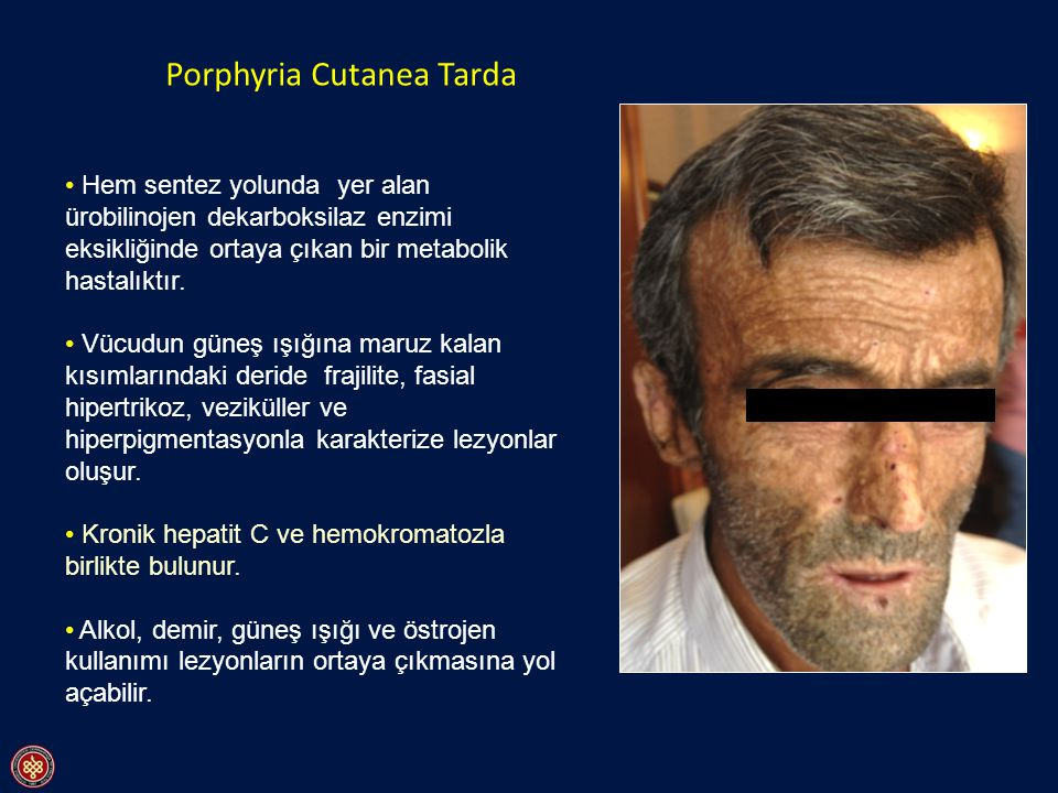 Types of Porphyria