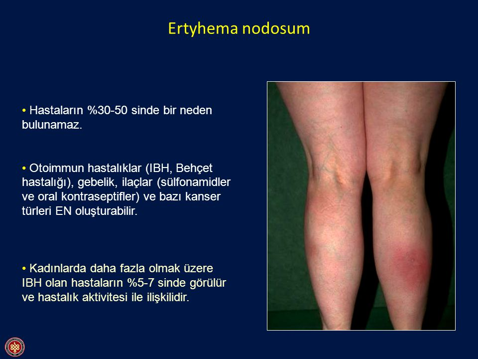 Ertyhema nodosum Hastaların %30-50 sinde bir neden bulunamaz.
