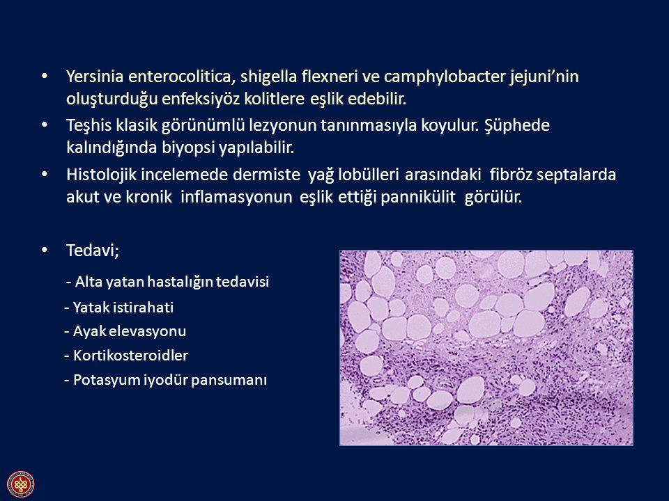 - Alta yatan hastalığın tedavisi
