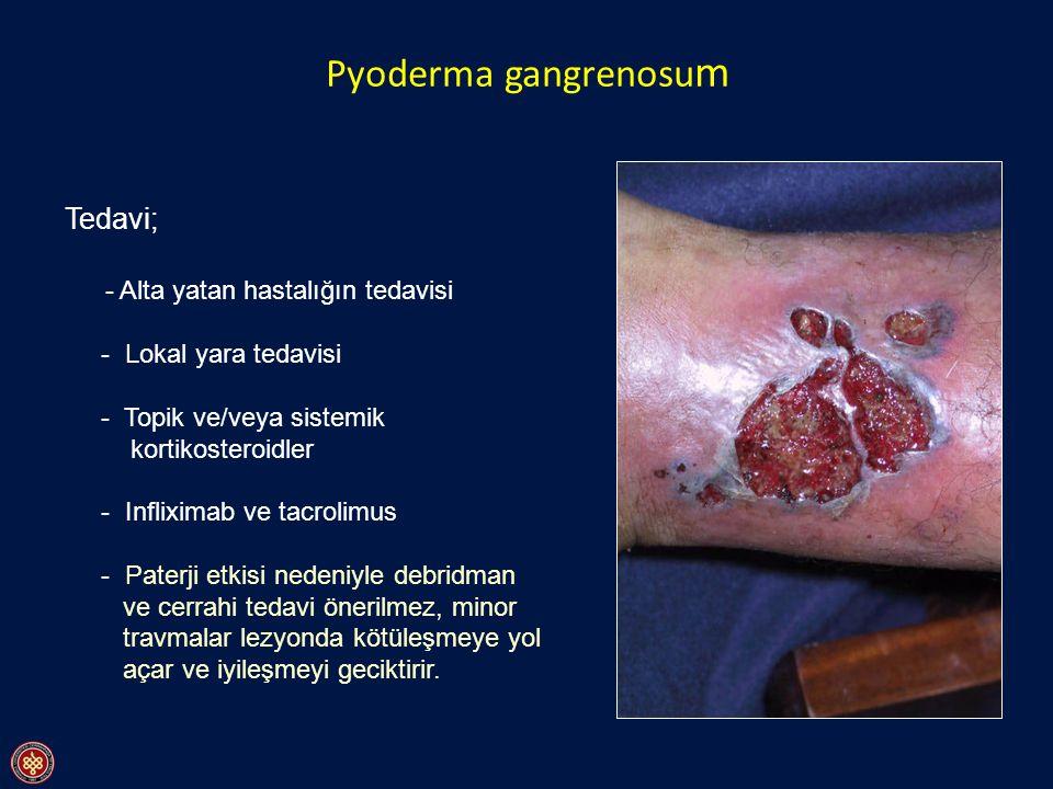 Pyoderma gangrenosum Tedavi; - Alta yatan hastalığın tedavisi