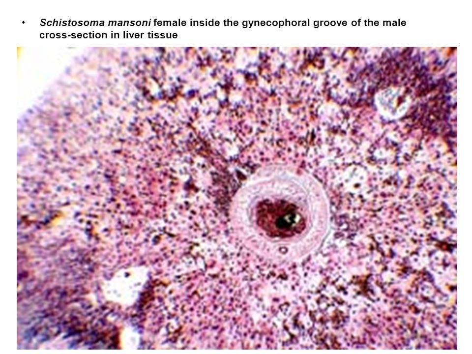 Schistosoma mansoni female inside the gynecophoral groove of the male cross-section in liver tissue